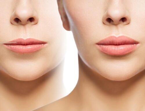 Labios más carnosos e hidratados