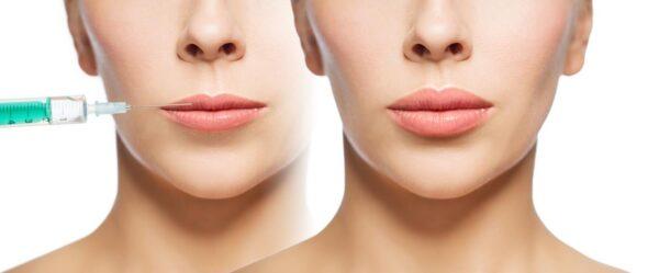 relleno de labios en Zaragoza